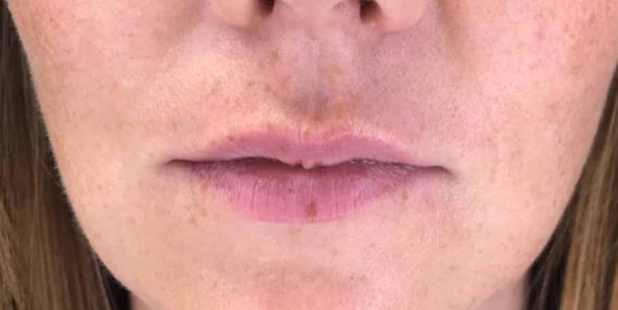 maquillage levres avant - Lèvres